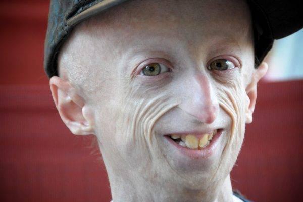 """Progeria, Sammy Basso operato al cuore: """"Adesso me la gioco tutta"""""""