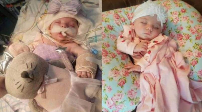 Neonata picchiata dai genitori, i medici compiono il miracolo - Foto