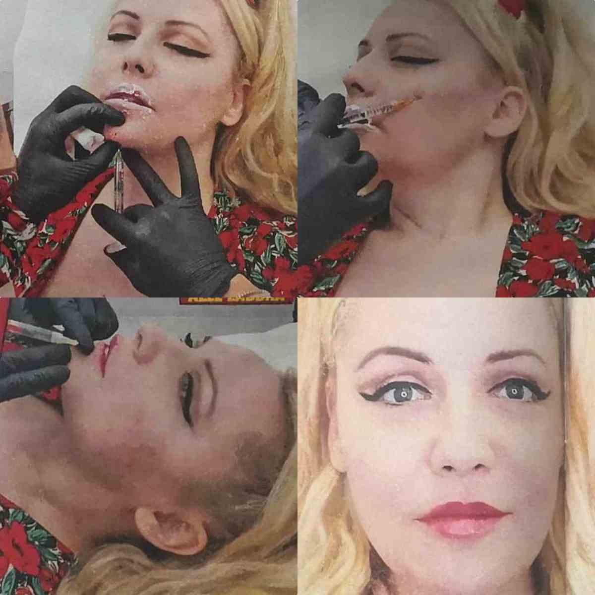 la subrettina, lisa fusco si è rifatta labbra e zigomi, le foto