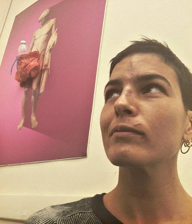 Edelfa Chiara Masciotta foto cicatrici incidenti