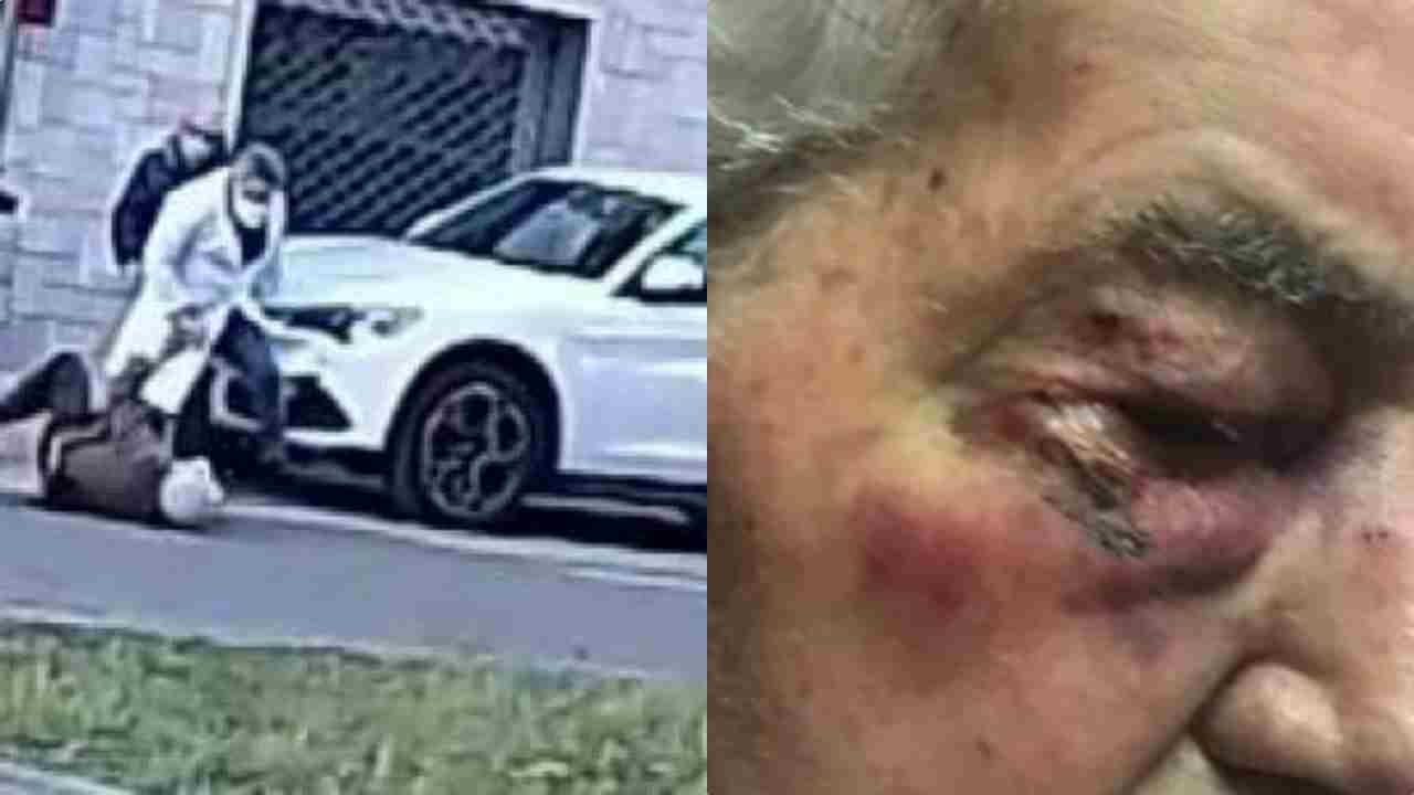 """Anziano picchiato dal medico rompe il silenzio: """"Farabutto"""""""