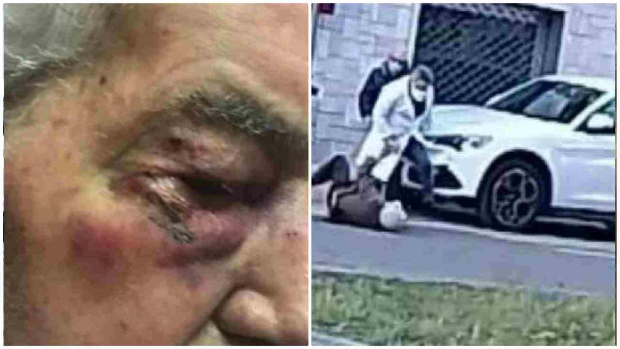 Anziano picchiato dal medico