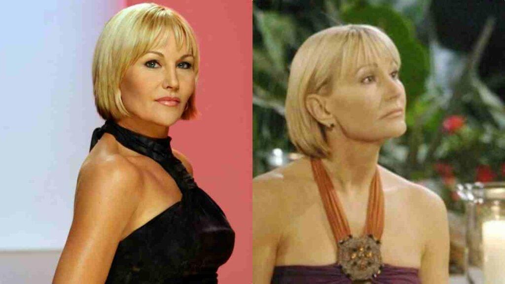 Darla, l'attrice di Beutiful irriconoscibile dopo la malattia