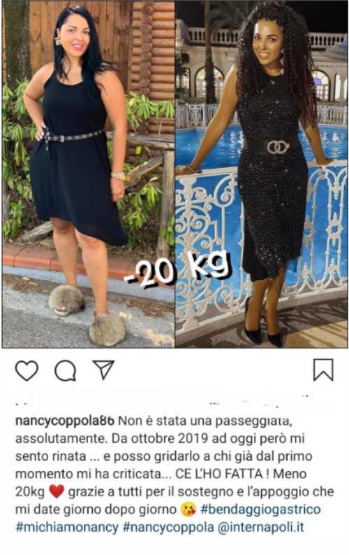 Nancy Coppola prima e dopo