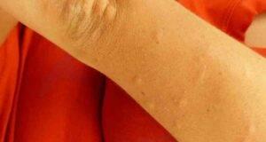 punture zanzare rimedi naturali