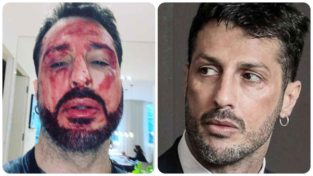 Fabrizio Corona si taglia i polsi
